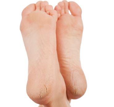 pies secos y agrietados causas