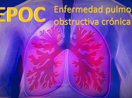 La enfermedad pulmonar obstructiva crónica (EPOC) se caracteriza por un bloqueo persistente del flujo de aire. Se trata de una enfermedad subdiagnosticada y potencialmente mortal que altera la respiración normal y no es totalmente reversible. Los términos bronquitis crónica y enfisema están anticuados, quedando englobados en el diagnóstico de EPOC. Los síntomas más frecuentes de la EPOC son:- La falta de aire o dificultad para respirar o disnea.- la expectoración anormal -y la tos crónica. oc
