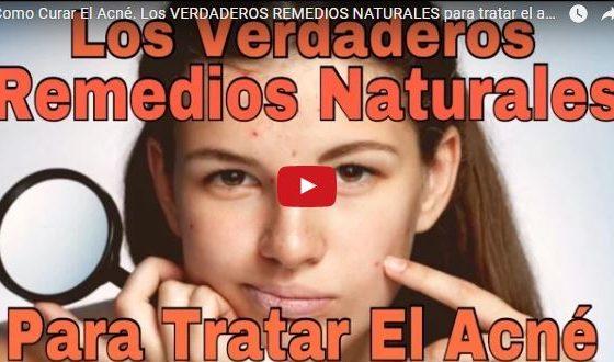 acne remedios caseros naturales granos en la cara
