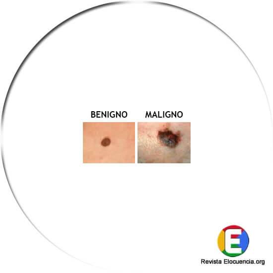 signos melanoma color