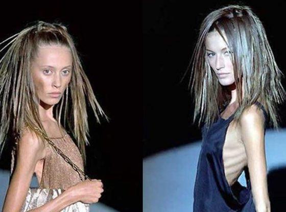 anorexia portada