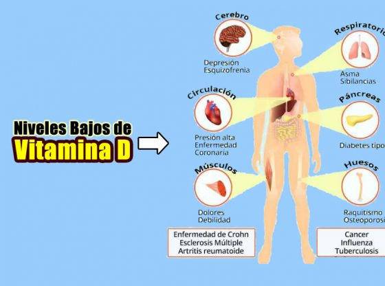 niveles bajos e vitamina d 1