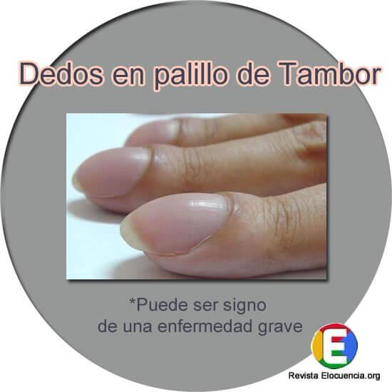 signos en las uñas de enfermedades graves dedos en palillo de tambor