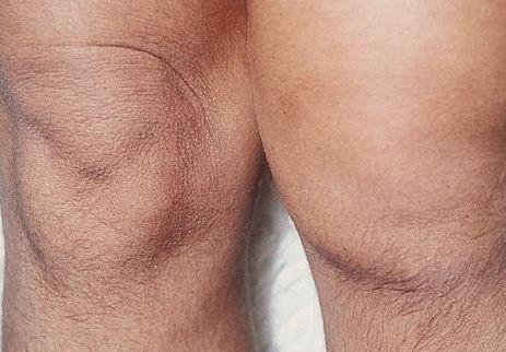 falta de vitamina d artritis reumatoide