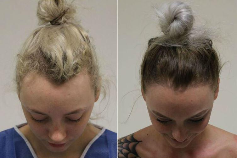 caída del cabello 2