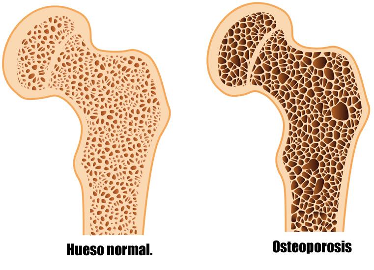 Huesos sanos. osteoporosis comparacion