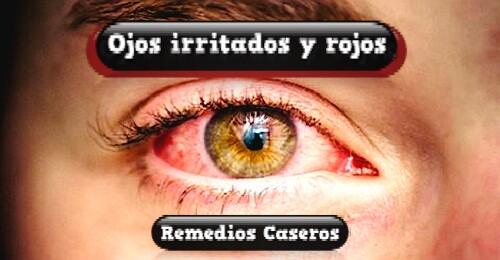 ENROJECIMIENTO-EN-LOS-OJOS OJOS ROJOS REMEDIOS CASEROS PARA ELIMINAR OJOS ROJOS COLORADOS 5