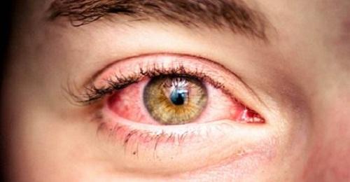 Enrojecimiento en los ojos.
