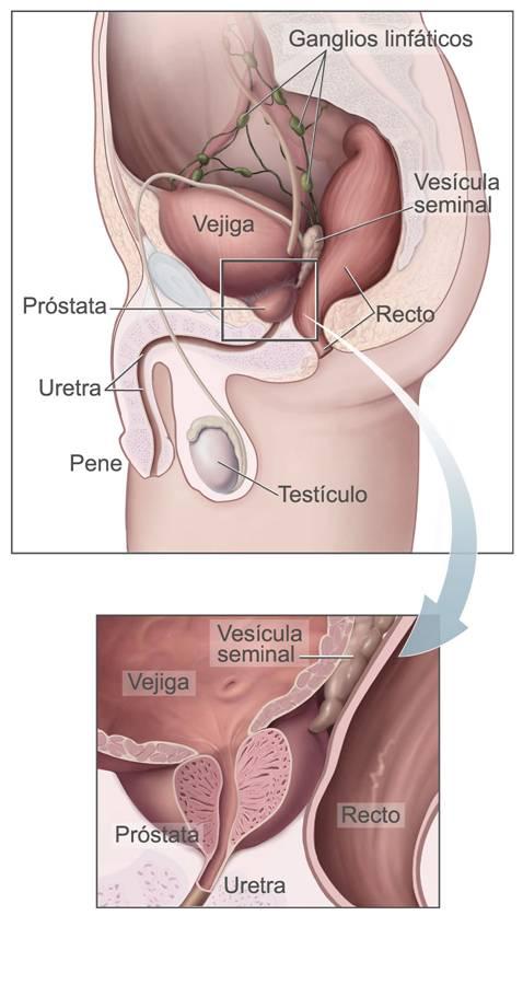 prostatitis, hiperplasia y cáncer de próstata, síntomas, alimentación para prevenir