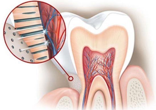 sensibilidad dental. Parte sin esmalte. Zona Sensible