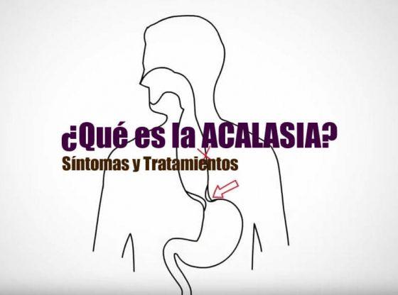 acalasia esofagica sintomas tratamiento 1