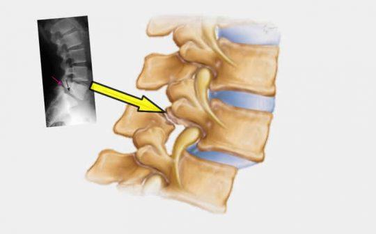Imagen gráfica y radiografía de una columna con espondilolistesis
