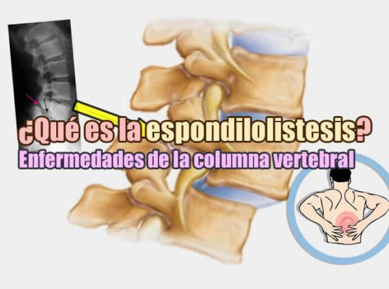 imagen gráfica de la columna con la enfermedad de la espondilolistesis